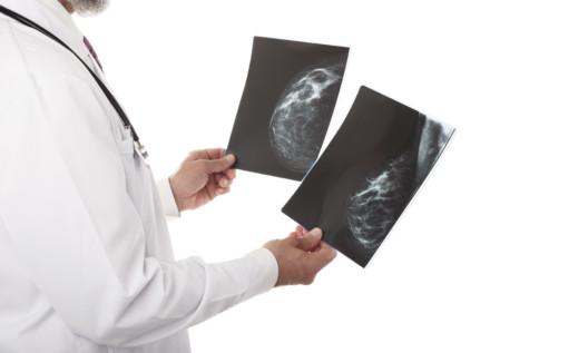 Czy to rak piersi